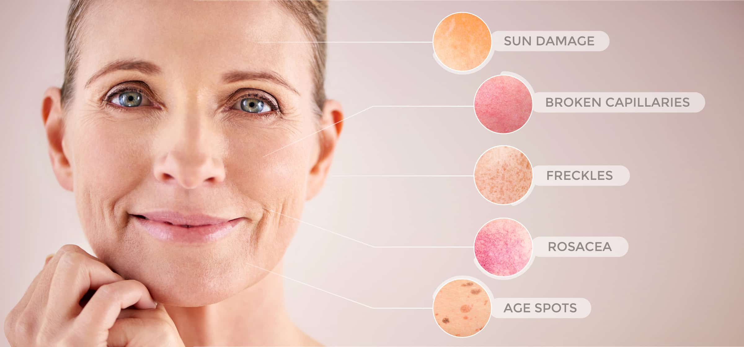 top rated facial laser in montreal